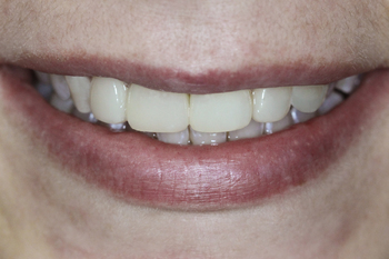 Smile view after two weeks after all restoration procedures
