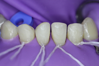 Preparation of teeth 32, 31, 41; 42