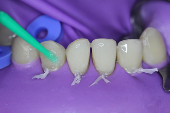 "Application and rubbing of the ""Jen-Unibond"" adhesive into the tooth surface"