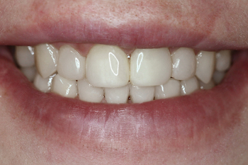 Smile view in two weeks after all restoration procedures