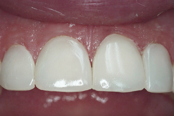Finishing of the four upper central incisors
